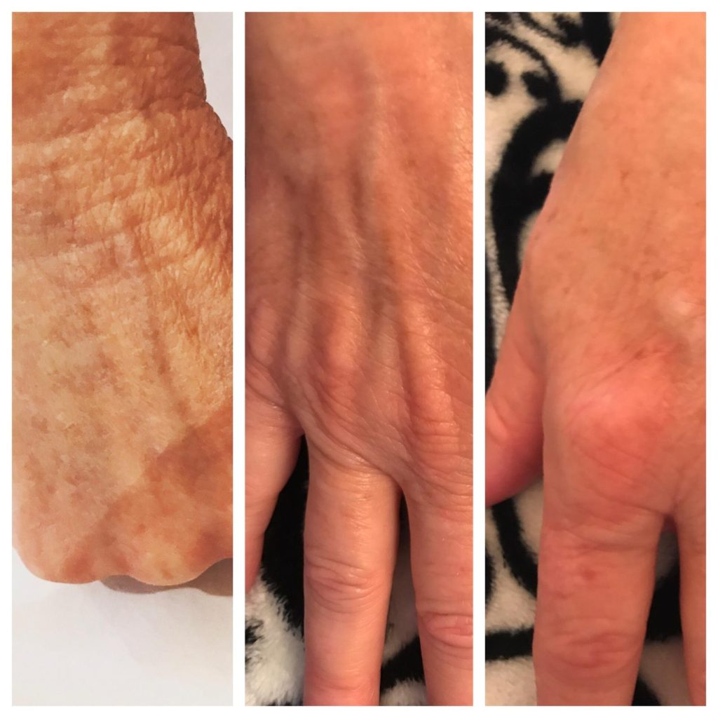 Laser Girl Skin Care Anita Marcus Sedona Prescott