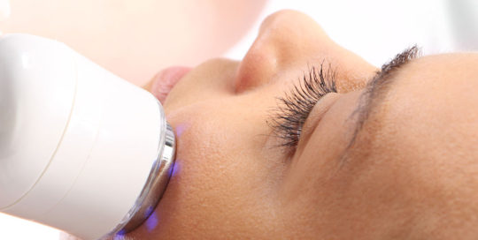 Laser Girl Radio Frequency Skin Tightening
